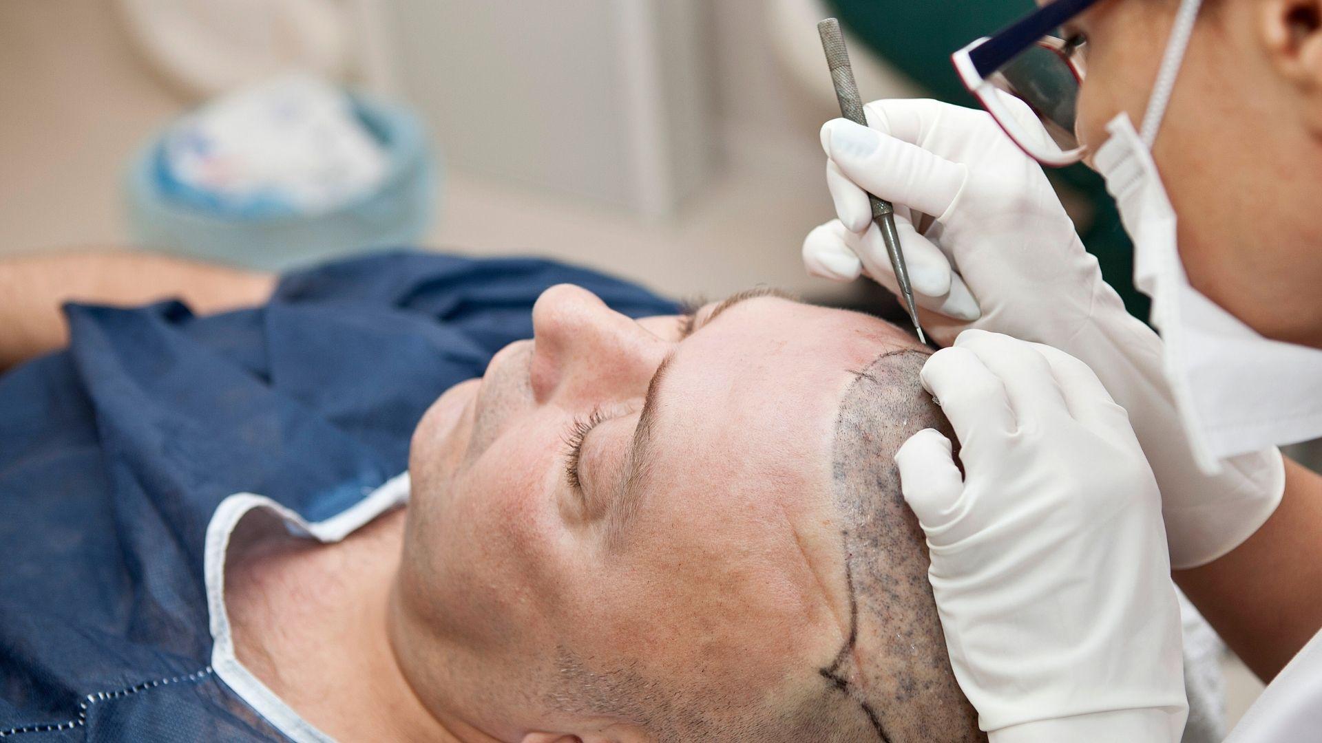 Hair transplant clinics in chandigarh